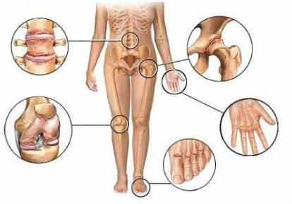 fájdalom a térdízületben a diprospan injekció után