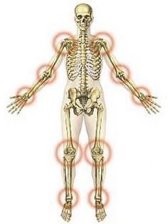 ízületek ízületek kezelésére ha az artrózist nem kezelik
