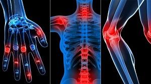 hogyan segítsünk magadnak a vállízület artrózisában)