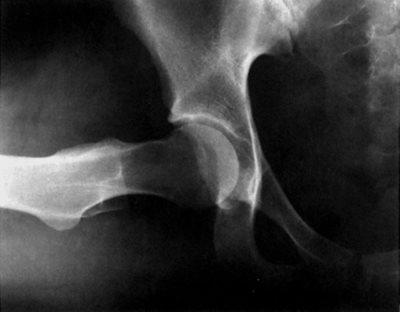 csontvelő-gyulladás a térdízületben)