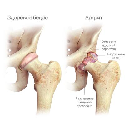 a jobb csípőízület osteoarthritis kezelése)