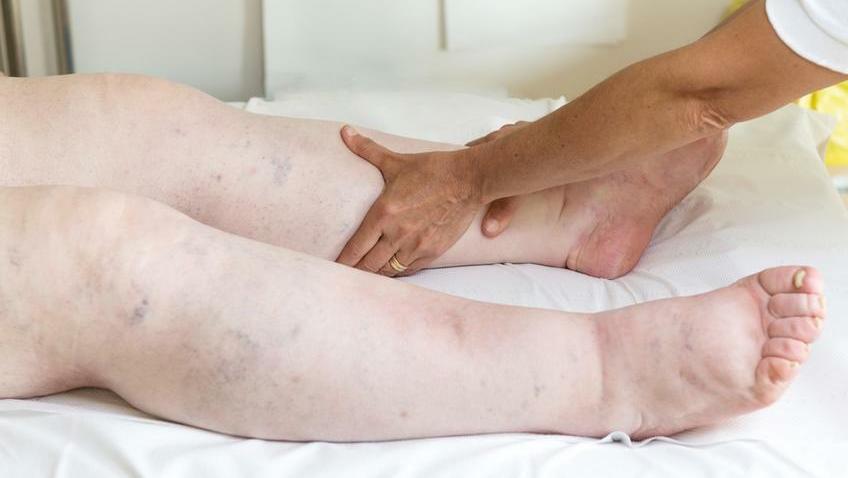 krém vagy kenőcs ízületi betegségek esetén