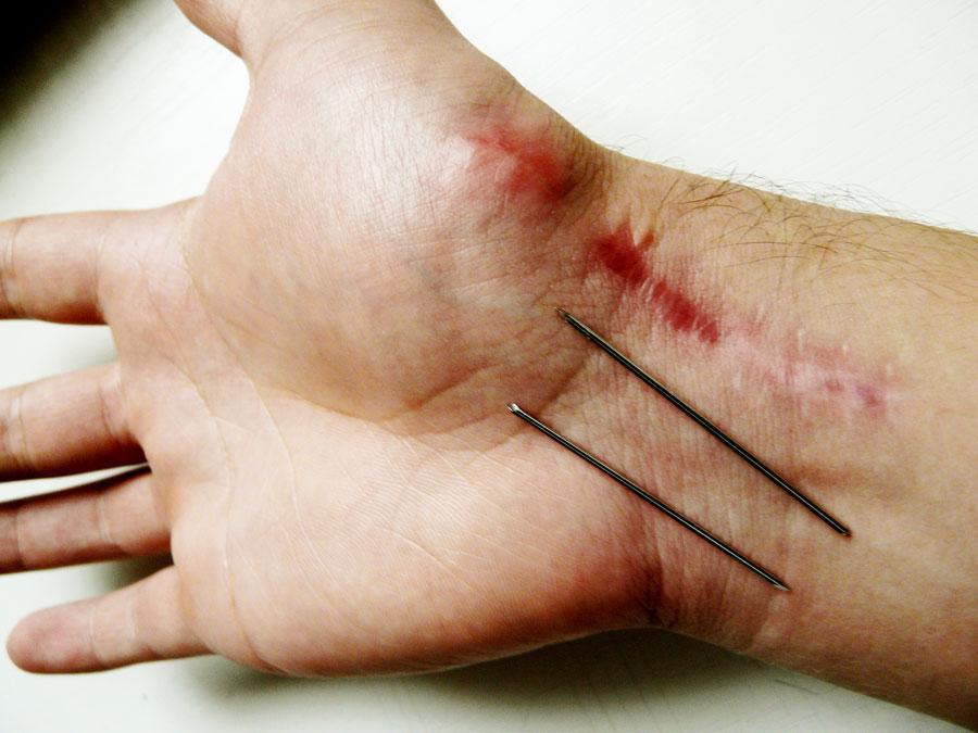 könyök sérülés egy hajó törése az ujjak ízületei megnövelték a kezelést