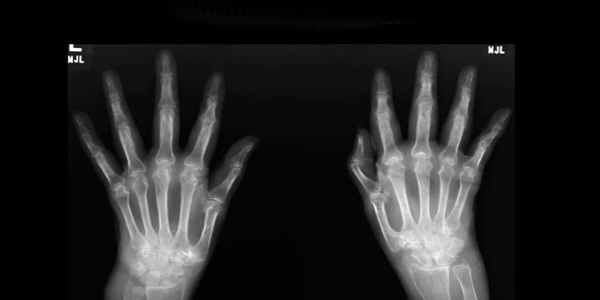 a kezek interfalangeális ízületei fájnak