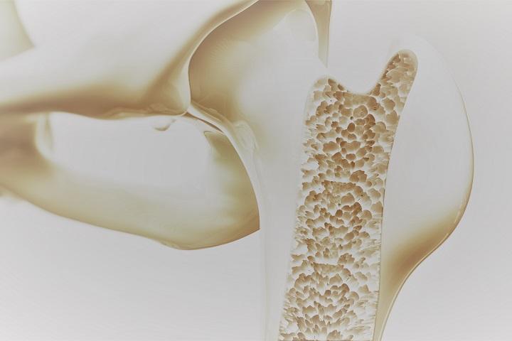 kézkezelő csontritkulás kezelése