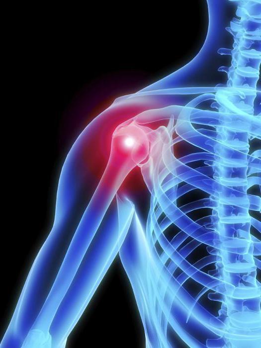 vállízület kezelése osteochondrosis