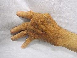 artrózis deformáló kézkezelés