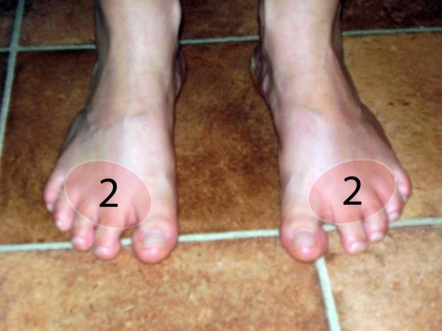 ízületi gyulladás a második lábujjon)
