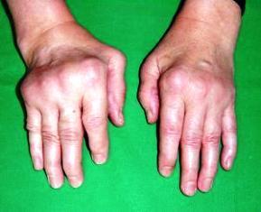 rheumatoid arthritis ízületi elváltozások