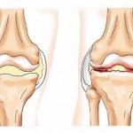 saki sárkezelés artrózis esetén