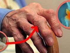 miért fájnak az ujjak ízületei edzés után)