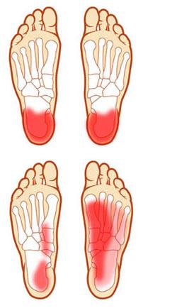 ízületi fájdalom a láb metatarsalis részében)