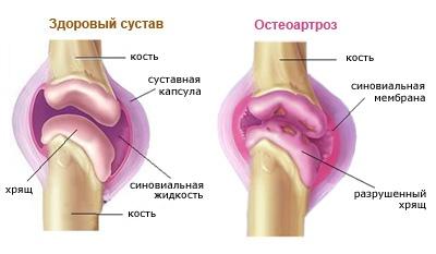csípőízületi gyulladás 2. fokozatú kezelése