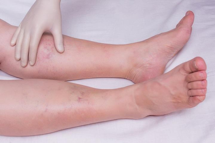 a láb és a térd ízületeinek duzzanata