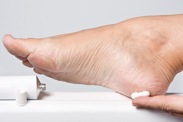 a lábujjak ízületeinek gyulladása kenőcs