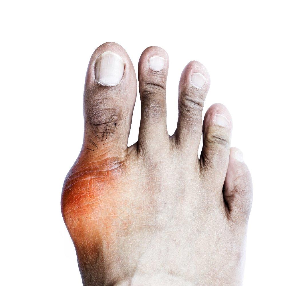 hogyan kezelik az artritist az artrózis