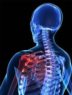 a vállízület deformáló artrózisa 1 fokos)