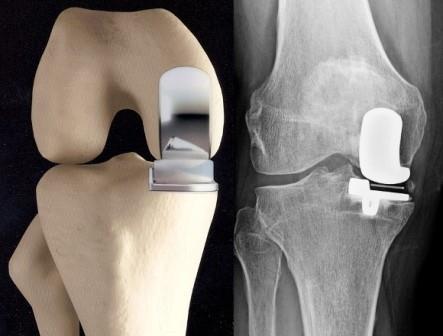 térdízület és sarok artrózisa