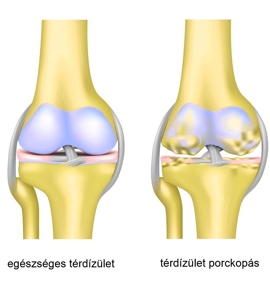Osteoarthritis: tünetek, okok, diagnózis, kezelés - Osteoarthritis -