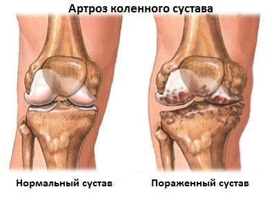 a bokaízület deformáló artrózisa 1-2 fokkal)