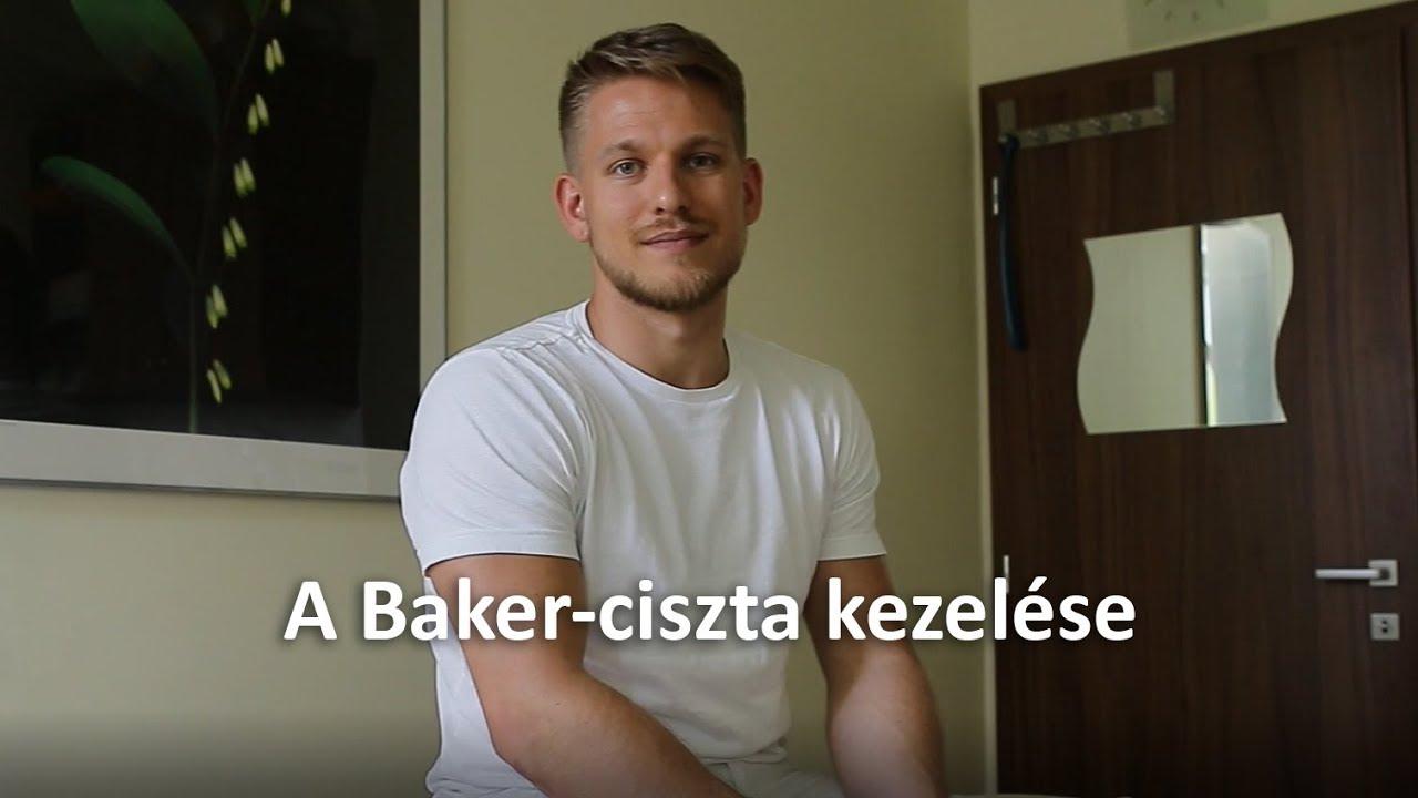 baker ciszta kezelése homeopátiával)