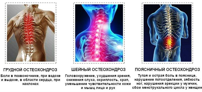 spondylosis osteochondrozis artrózisának kezelése
