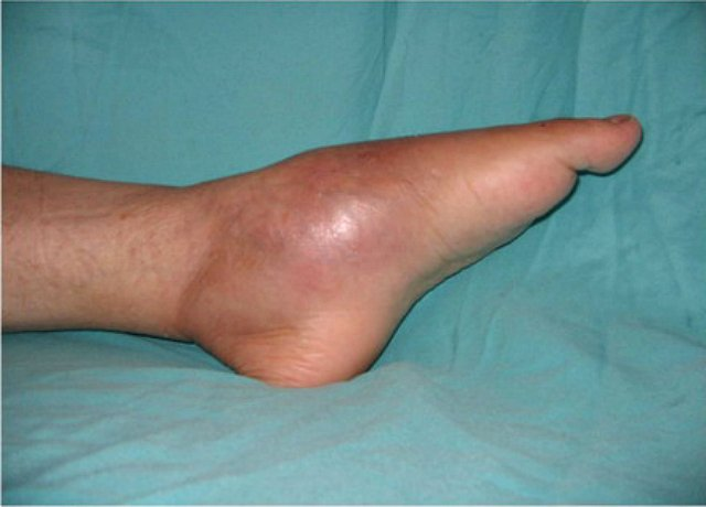 ízületi arthro gél ha a csípőízületek fájnak, hogyan kell kezelni