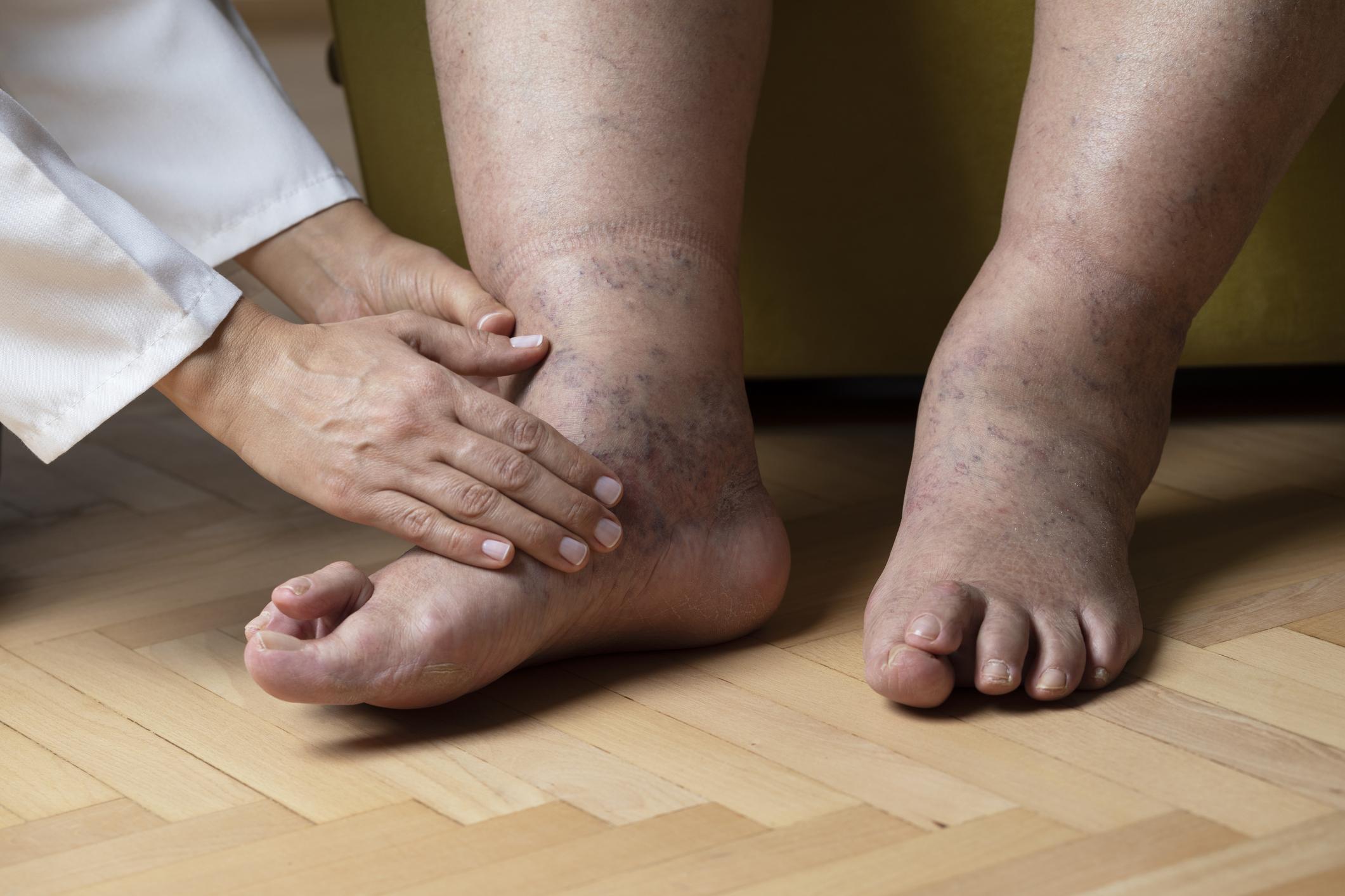 duzzadt láb kezelés)