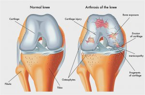miért fáj a karon lévő ízület reggel fájó lábujjak artritisz kezelése