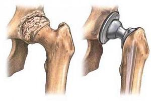 csípőfájdalom a csípő izmaiban)