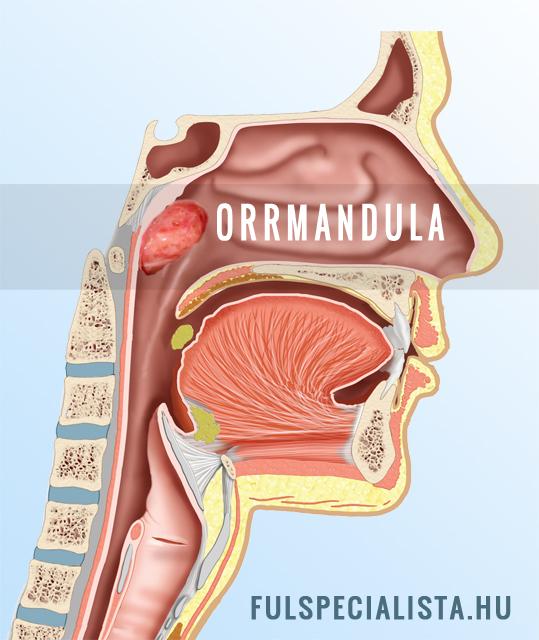mandula ízületi betegség esetén