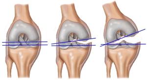 boka ligamentum sérülésének helyreállítási periódusa