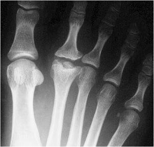 osteochondritis dissecans tali - Elsősegély, sérülések