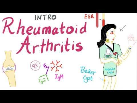 arthrosis a leghatékonyabb kezelések