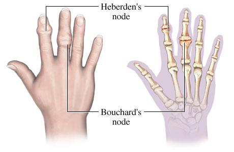 interfalangealis arthritis)