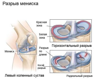 a térdízület fájdalmának oka