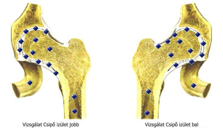 homeopátia a csípőízületek fájdalmához
