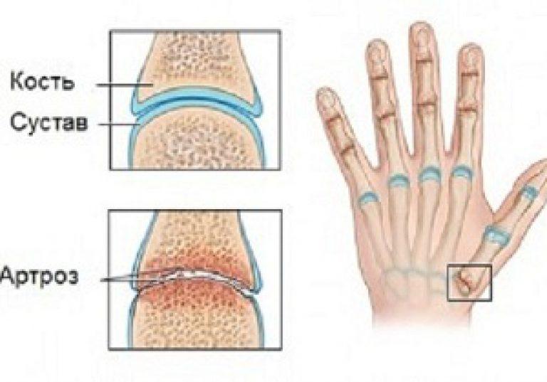 ujjak artrózisának kezelésére szolgáló készítmények)