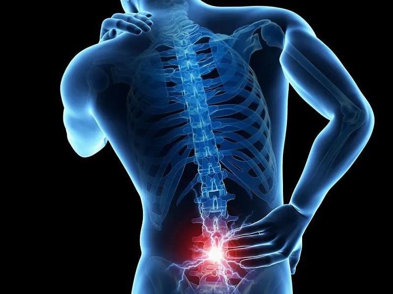 a 68. cikk az izom-csontrendszer és a kötőszövet betegségei)