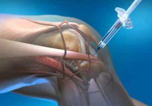 térdizületi arthrosis kezelése