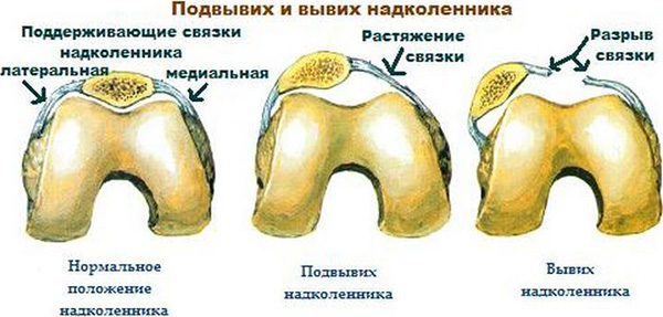 A combcsont törése: besorolás és típusok - Ekcéma