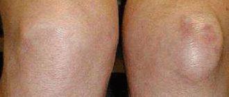 a térd artrózisa 2 fok hogyan segít az akupunktúra az ízületi fájdalmakban