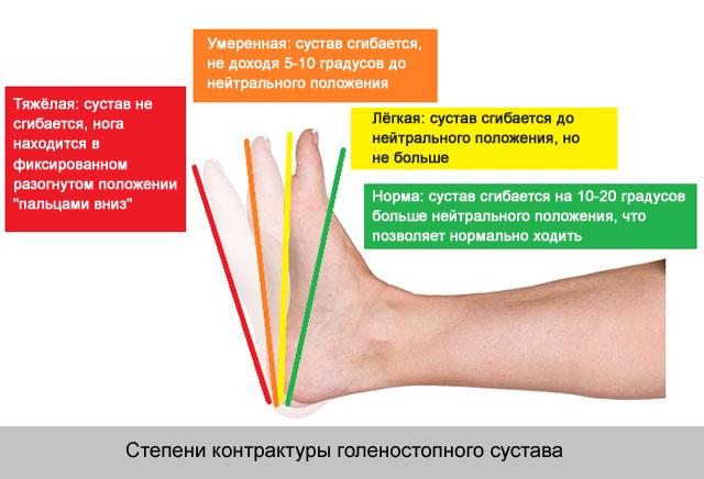 a bokaízület fájdalommentes duzzanatát)