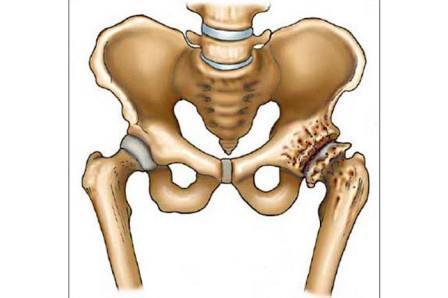 ahol kezelhető a csípőízület coxarthrosis)