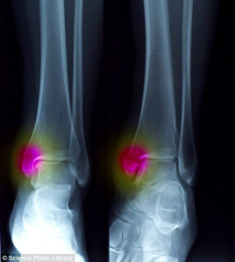 Recovering from an ankle sprain | What is gout, Gout, How to cure gout