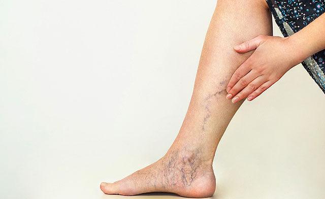 A lábfájdalom erről árulkodik - HáziPatika