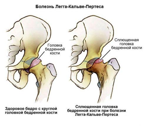 csípőízületi csontritkulások