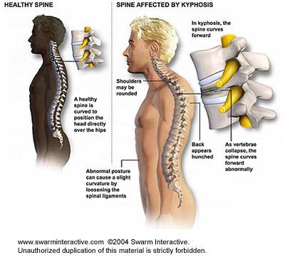 milyen gyógyszereket írnak fel a nyaki gerinc csontritkulására)