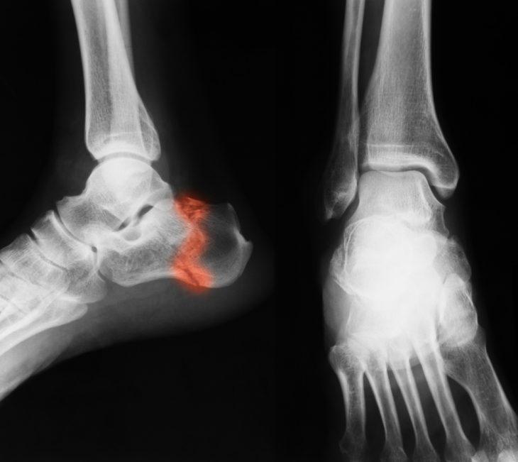 A boka arthrosisának foka és a kezelés módjai