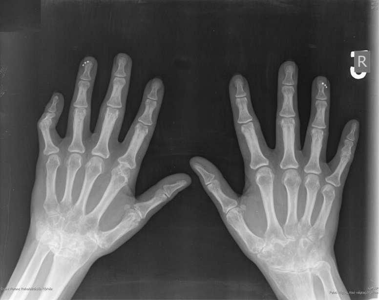 metacarpalis ízületi fájdalom